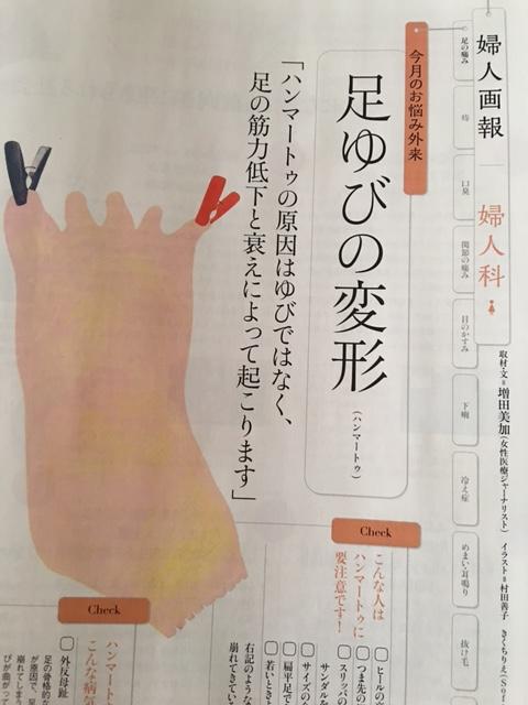 連載・婦人画報婦人科「今月のお悩み外来 足ゆびの変形」